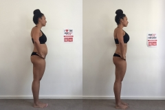 Before-After-Right